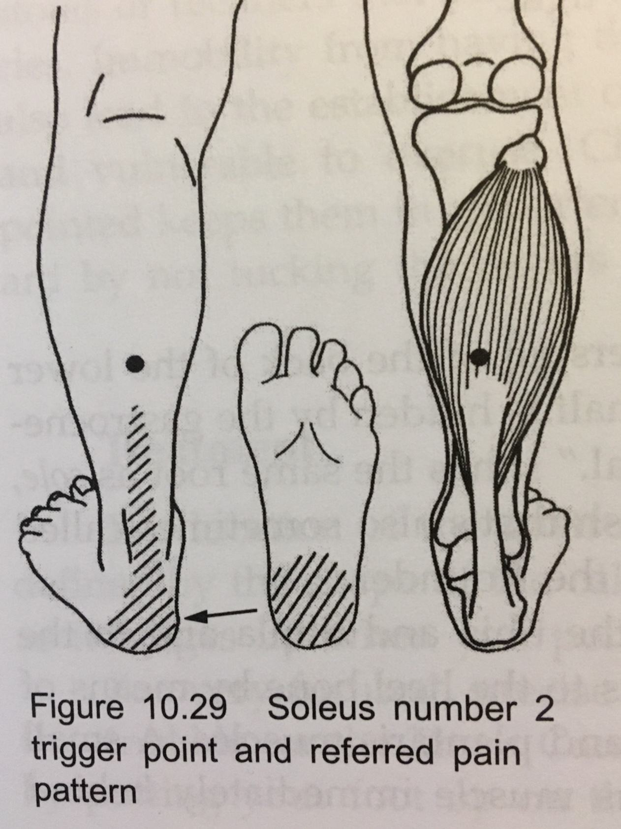 Soleus Number 2 Trigger Point and Referred Pain Pattern