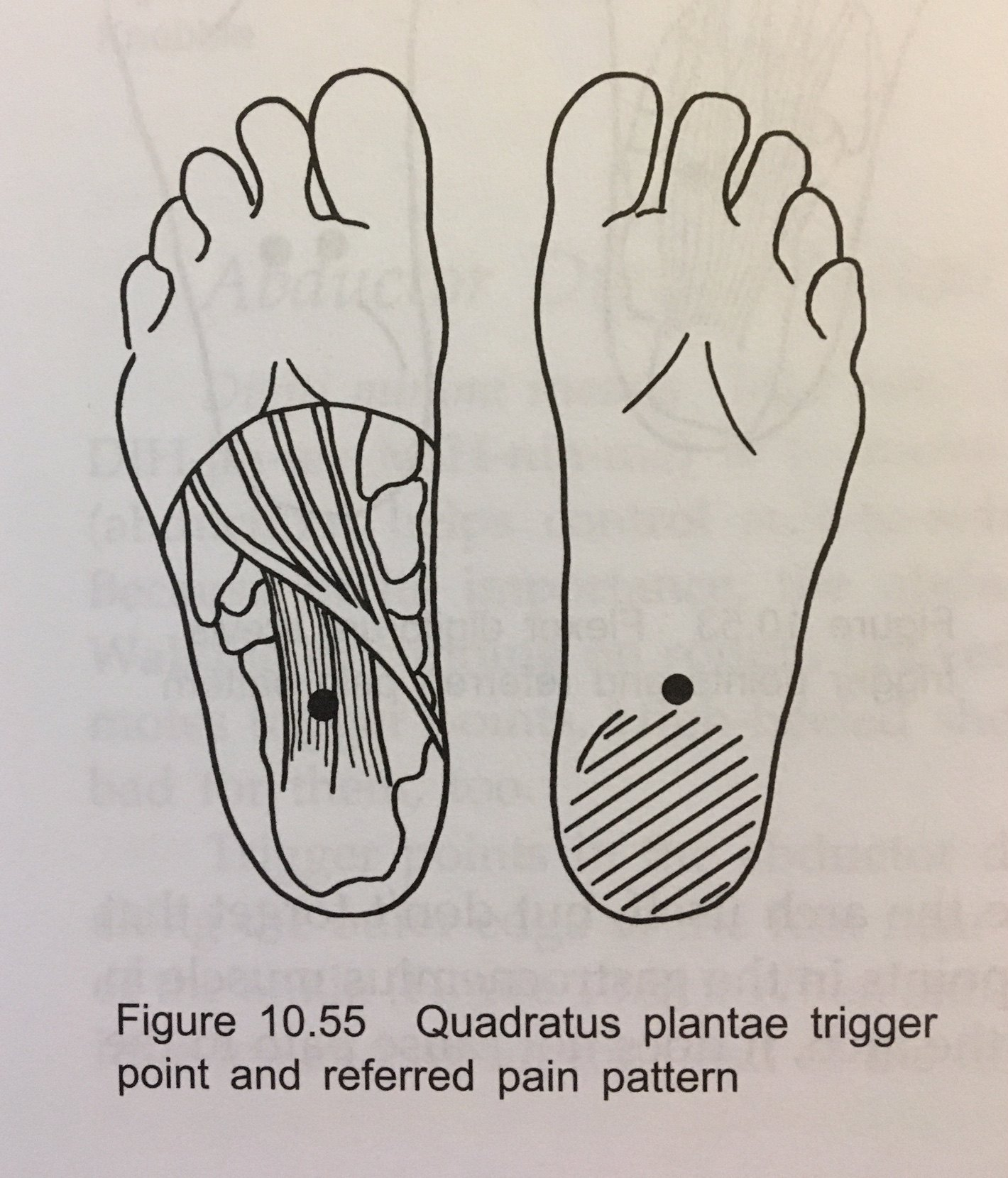 Quadratus Plantae Trigger Point and Referred Pain Pattern